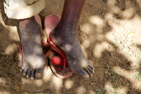 Picture 1. Example of a man in Siaya County, Kenya, with jiggers infection